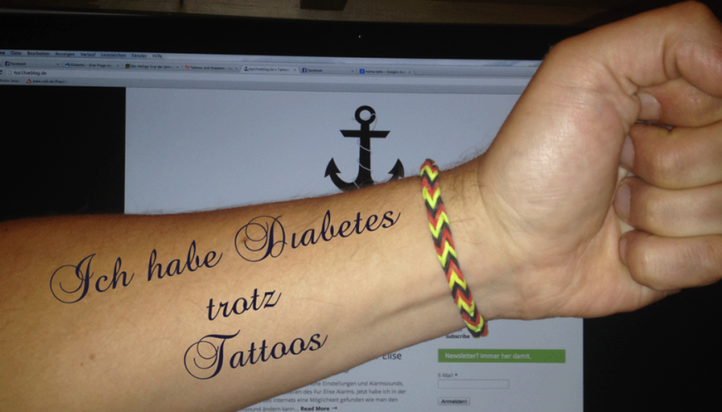 Diabetes-trotz-Tattoos