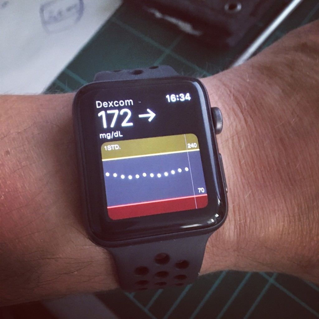 Dexcom G5 Und Apple Watch Beim Nächsten Ton Ist Dein Blutzucker Im